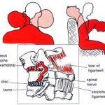 Current Headrest Design and Whiplash Injury
